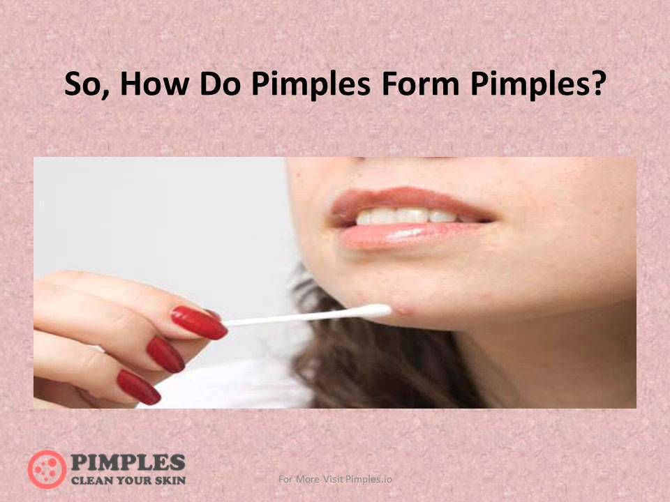 How Do Pimples Form Pimples And Its Prevention - YouTube
