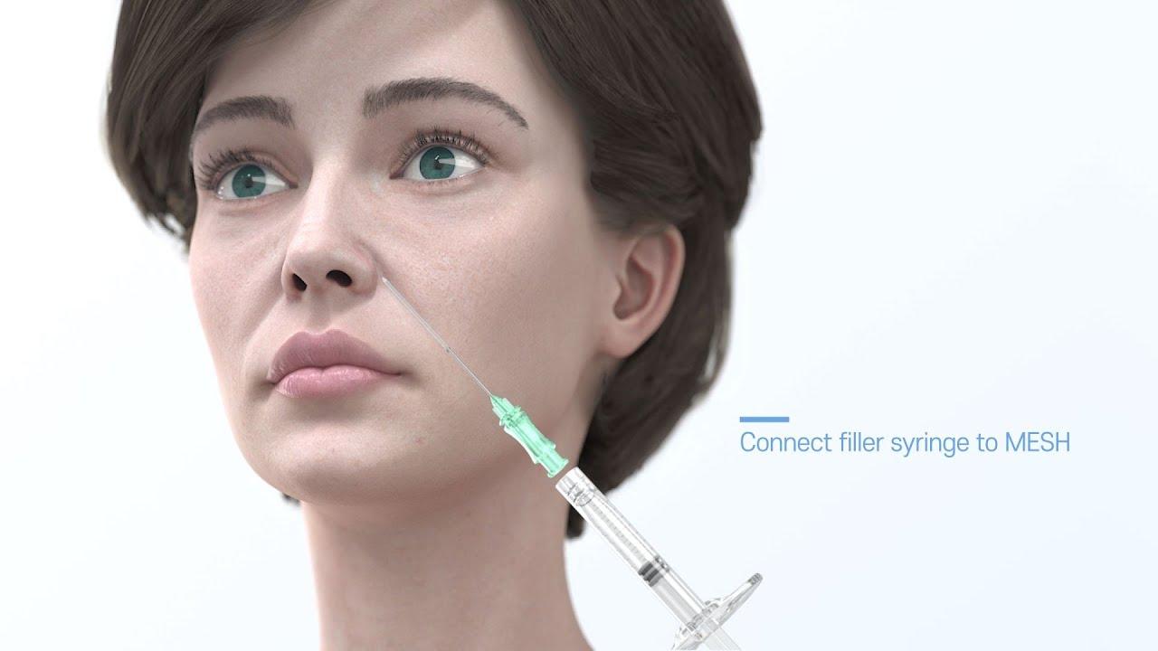팔자주름 시술 수술 팔자주름 필러 주름수술 MESH시술법 그랑에스피오 3D제품영상