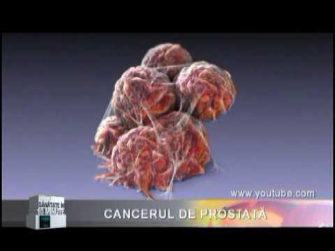 Cancerul de prostata   prostatita.adonisfarm.ro