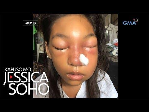 Kapuso Mo, Jessica Soho: Dalaga, namaga ang mukha matapos tirisin ang tigyawat gamit ang nail cutter