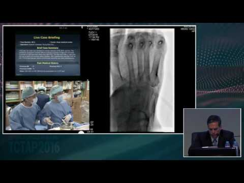 [Endovascular Symposium] Live Case Session II. Below the Knee or SFA Intervention