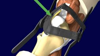 Pto  Patellar Tracking Orthosis  Knee Brace Directions And Application