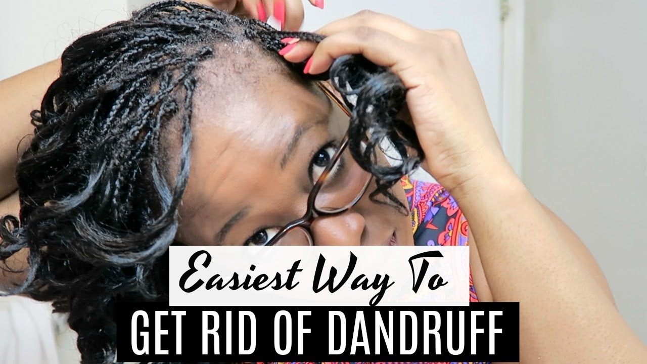 how to stop getting dandruff
