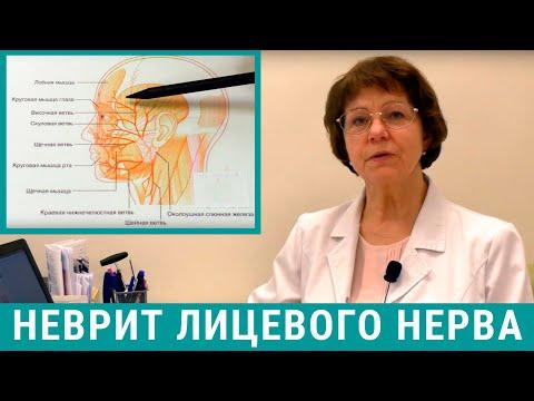 Неврит лицевого нерва: лечение причины