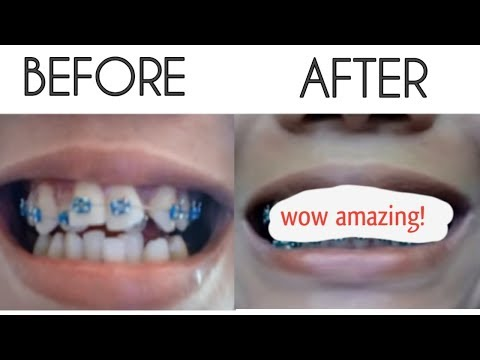 BRACES TIME LAPSE ( March 2017 to March 2019)