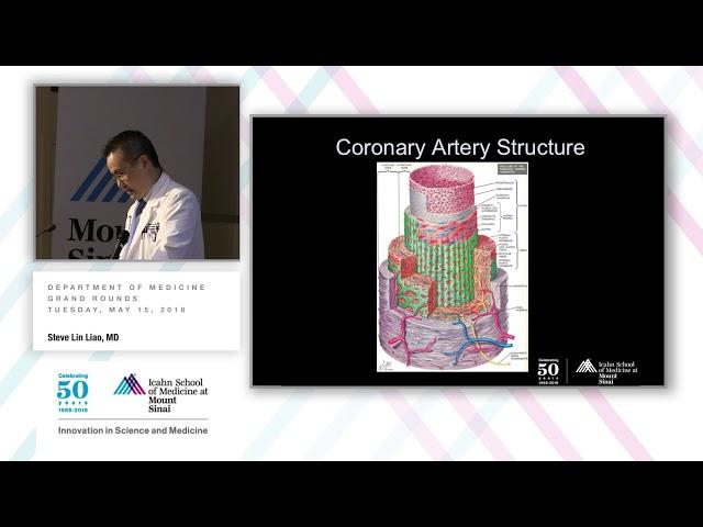 Non-Invasive Testing for CAD Diagnosis and Prognostication