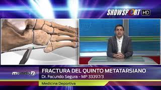 DR SEGURA - FRACTURA DEL QUINTO METATARSIANO