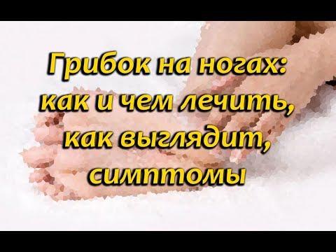 Грибок кожи ног: как выглядит, симптомы и лечение