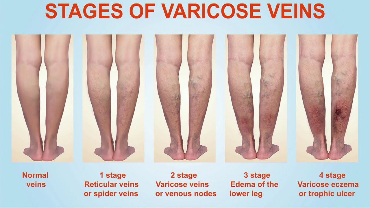 Stages of Varicose Veins - YouTube