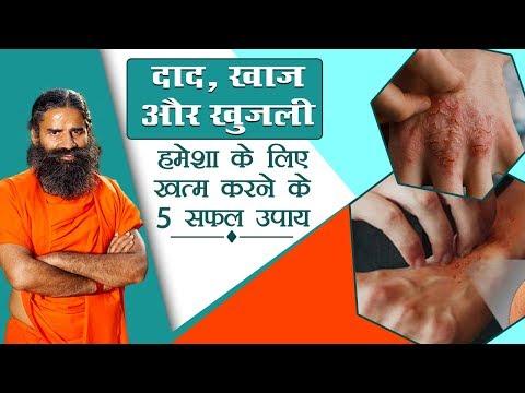 दाद-खाज-खुजली-हमेशा-के-लिए-खत्म-करने-के-5-सफल-उपाय-|-swami-ramdev