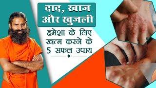 दाद खाज खुजली हमेशा के लिए खत्म करने के 5 सफल उपाय | Swami Ramdev