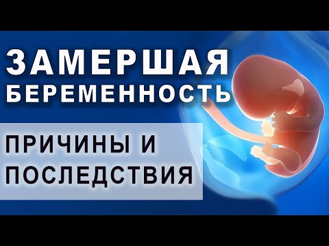 Как определить замершую беременность
