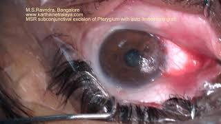 Pinguecula, Penyakit Mata yang Membuat Penderitanya Mengalami Bintik Putih di Sekitar Konjungtiva.
