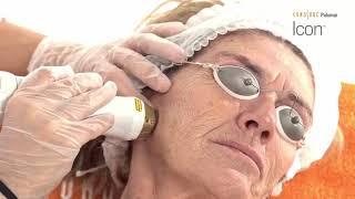 Eliminación de arrugas faciales con la Plataforma Icon - Vídeo cedido por Cynosure