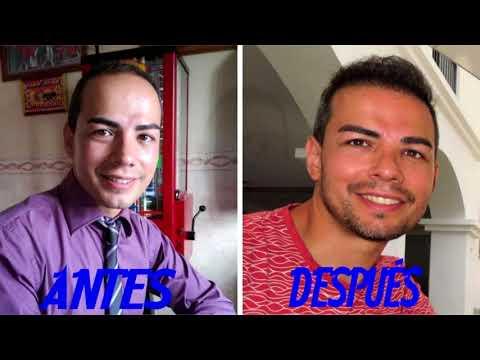 Experiencia personal con cliniFUE Javier de Alicante