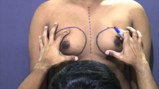 Male breast (Gynecomastia) Correction Thumbnail