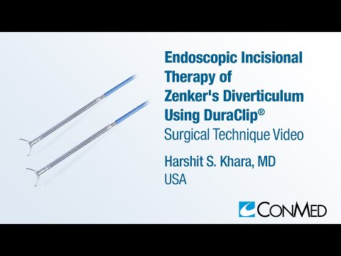 Dr. Harshit Khara - Endoscopic Therapy of Zenker's Diverticulum Using DuraClip™ - CONMED Technique