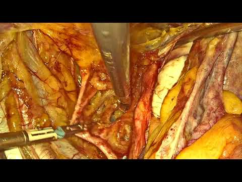 Endometrial Cancer Staging- Part 1 (Radical Hysterectomy)
