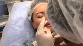 обучение практика студента контурная пластика губы