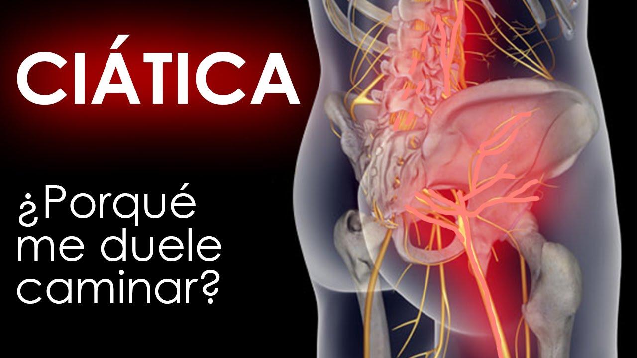 Dolor de ciatica y las emociones