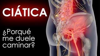 La ciática y que sintomas es sus