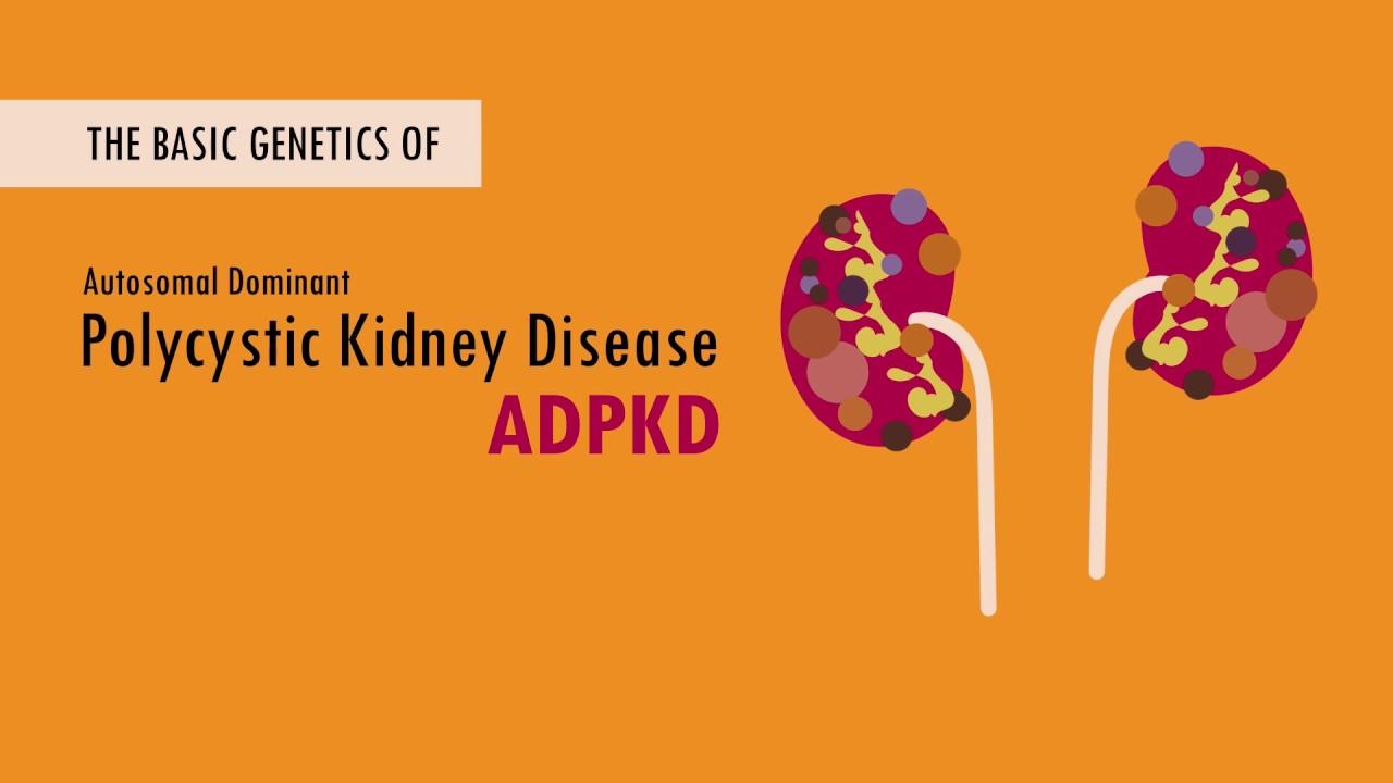 The Basic Genetics of Autosomal Dominant Polycystic Kidney Disease