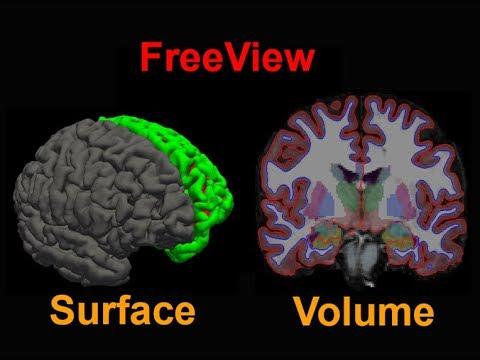 FreeSurfer #6: Freeview