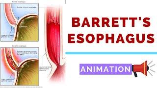 pierderea în greutate și barrett esofagus)