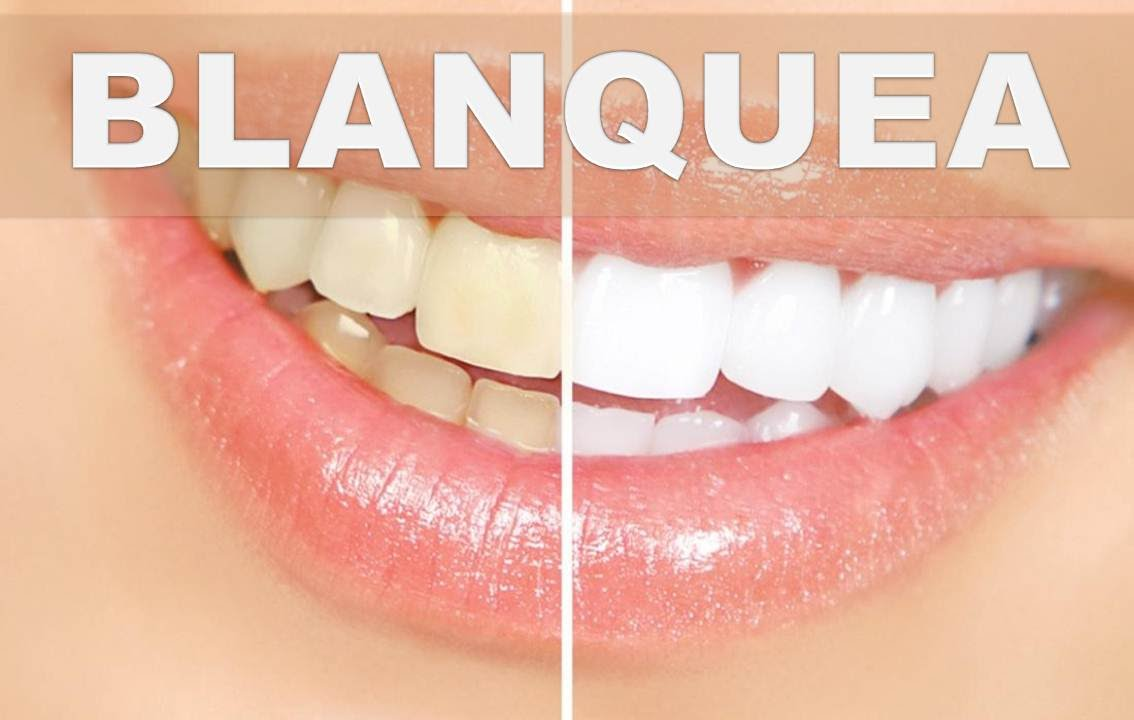 Remedios caseros para dientes amarillos como blanquear los dientes en casa f cilmente youtube - Como blanquear los dientes en casa ...