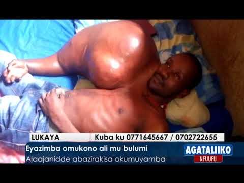 Eyazimba Omukono Ali Mu Bulumi.