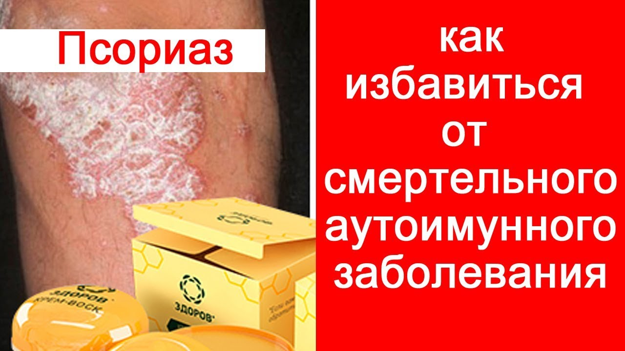 Отзыв на средство от псориаза Пчелиный спас #псориаз #лечениепсориаза #пчелиныйспас #4