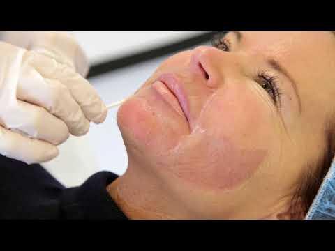 Chemische Peeling (met Foto's!) | FURROW.NL