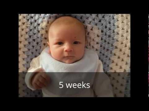 Our Son's Hemangioma Birthmark Journey so far. No treatment.