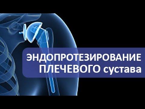 Артроз плечевого сустава: симптомы, лечение, фото
