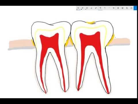Basic dental anatomy and gum disease explained