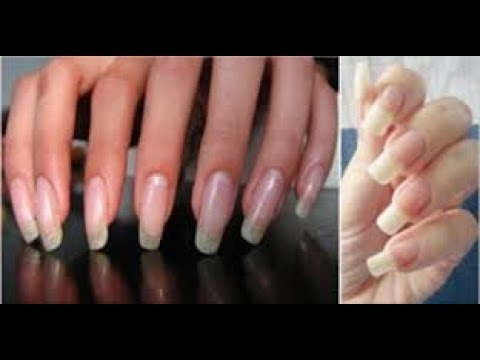 Natural Home Remedies for Nail Growth Fast and Effectively - YouTube