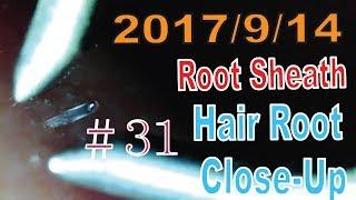 Hair Root / Root Sheath Close Up #31【Plucking Root Sheath】