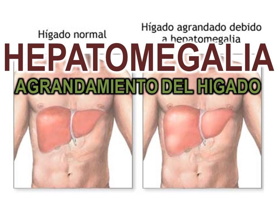 causas de hepatomegalia y esplenomegalia en adultos