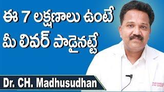Symptoms of Liver Failure in Telugu | Liver Disease | Health Tips In Telugu | Dr.CH.Madhusudhan