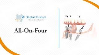 All-on-Four - Dental Tourism Mexico