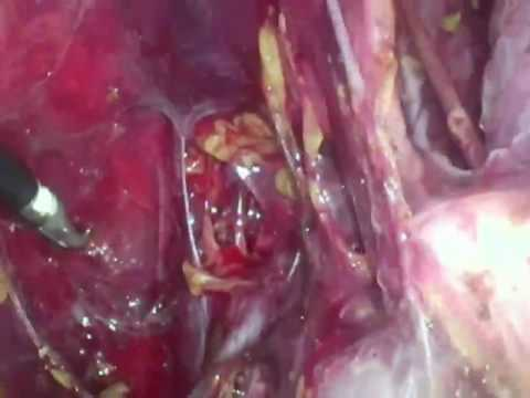 Laparoscopic Pelvic Lympadenectomy Performed at Charite, Campus Virchow Clinic, Germany