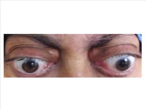 causes of bilateral exophthalmos bilateral proprtosis bulging eyes