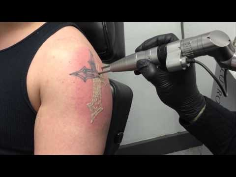 New Technology makes laser tattoo removal faster, more effective and less painful!