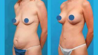 Mommy Makeover Surgery - Informational Video by Dallas Plastic Surgeon Dr. Bogdan