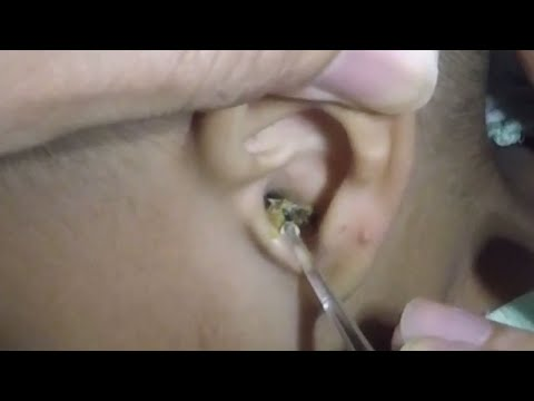 2 Year Old Boy's Giant Dry Earwax Removal