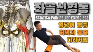 엉덩이, 허벅지 통증, 다리저림으로 힘들다면   좌골신…