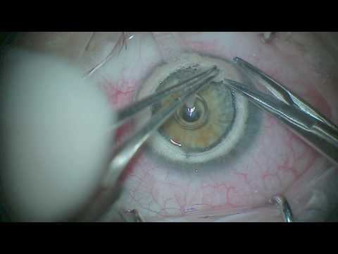 DALK (Deep anterior lamellar keratoplasty) for keratoconus