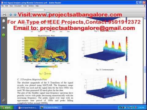 Eeg Coherence Matlab