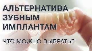 Чем заменить зубной имплант? Альтернатива имплантации зубов.