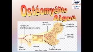 Ostéomyélite aiguë hematogene
